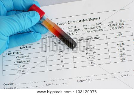 Lipid profile result: Normal