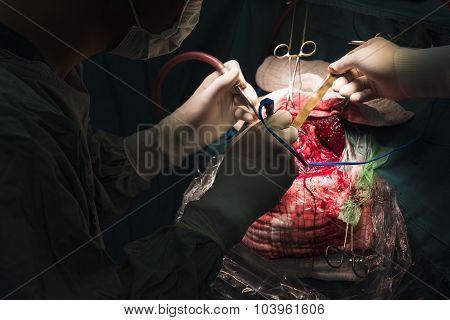 Neurosurgeon Remove Brain Tumor