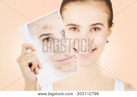 young blond woman releases her skin fron pimples