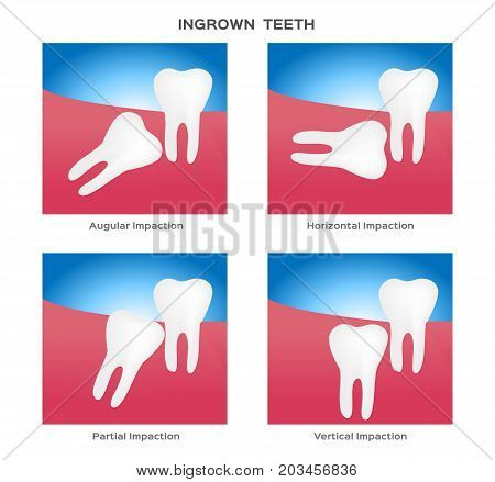 impacted and wisdom tooth vector on white background