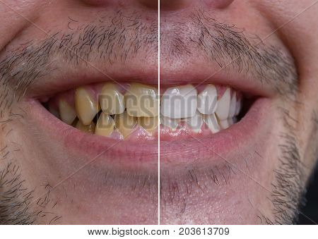 Teeth whitening concept. Smiling man with yellow teeth - before and after.