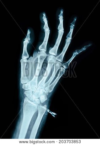 Human Left hand on device x ray - Medical Image