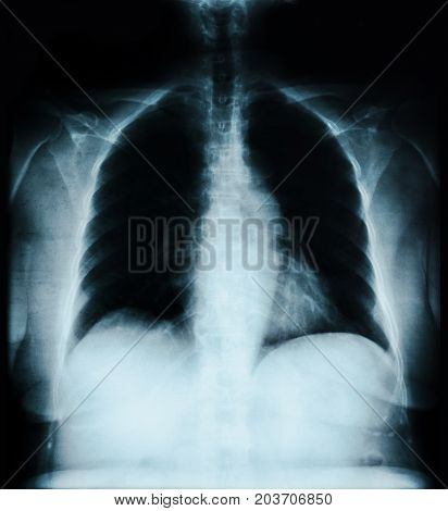 The X ray lung image on black.