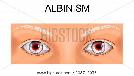 vector illustration of eyes of a person suffering from albinism