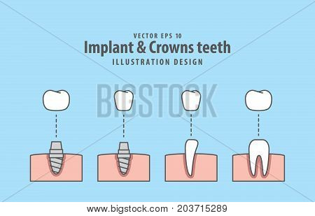 Implant & Crowns Teeth Illustration Vector On Blue Background. Dental Concept.