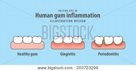Human Gum Inflammation Illustration Vector On Blue Background. Dental Concept.