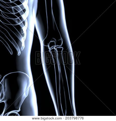 3D Illustration of Human Body Bone Joint Pains Anatomy (Elbow joints)