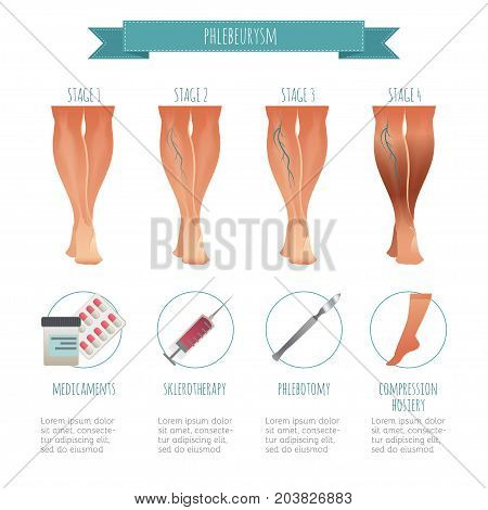 Phlebology infographic, treating varicose veins. Vector illustration of stage of vein diseases. Medical compression hosiery for your design