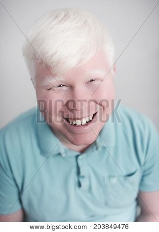 Albino young man portrait. Smiling guy isolated at white background. Albinism, pale skin.