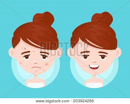 Acne infographic. Vector modern flat style cartoon character illustration. Isolated on blue background. Unhappy teen girl struggling with acne,pimples. Skin face problem concept. Before and after