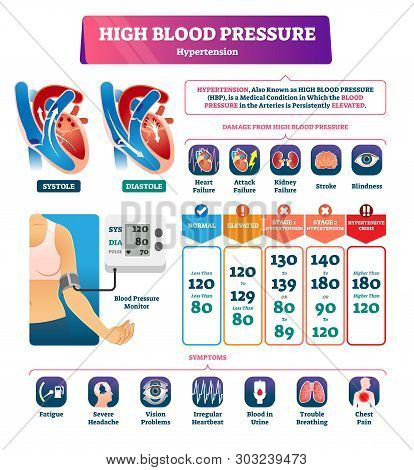 High Blood Pressure Vector Illustration. Labeled Systole Explanation Scheme. Medical Hypertension Hb