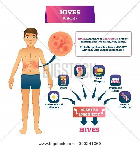 Hives Urticaria Vector Illustration. Labeled Skin Rash Explanation Scheme. Skin Problem With Red Ras