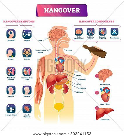Hangover Vector Illustration. Labeled Alcohol Sickness Explanation Scheme. Medical Booze Overdose Sy