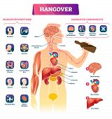 Hangover vector illustration. Labeled alcohol sickness explanation scheme. Medical booze overdose symptoms and components diagram. Ethanol drink health poisoning problem and inner organs infographic. poster