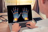 Doctor watching a x-ray of hands with pain in the joints of the fingers and wrists. Radiology concept. Osteoarthritis concept poster
