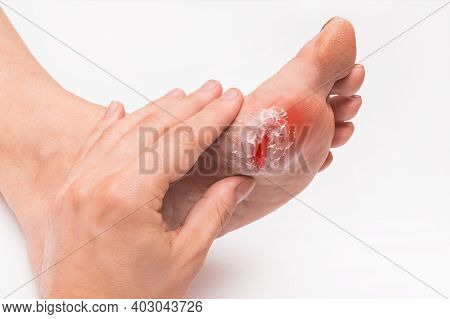 A Doctor's Hand Touches And Examines The Wound On The Foot Of An Elderly Woman On A White Background