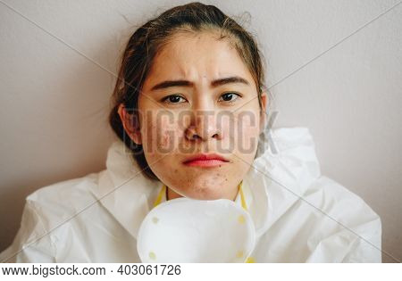 Healthcare Worker With Acne And Facial Wounds Occur From A Medical Mask After Work For A Longtime In