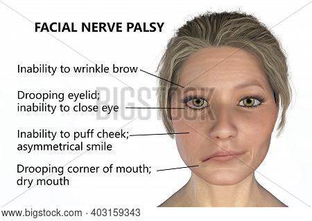 Facial Nerve Paralysis, Bell's Palsy, 3d Illustration Showing Female With One-sided Facial Nerve Par