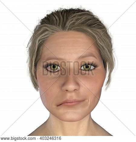 Facial Nerve Paralysis, Bells Palsy, 3d Illustration Showing Female With One-sided Facial Nerve Para