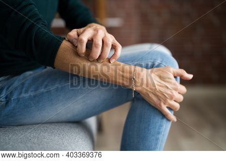 Woman Scratching Itching Body Skin With Allergy