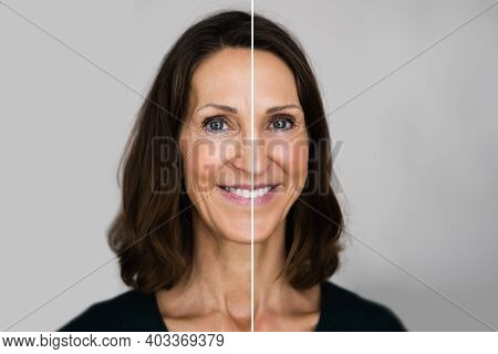 Anti Rejuvenation Wrinkles Lift Before And After