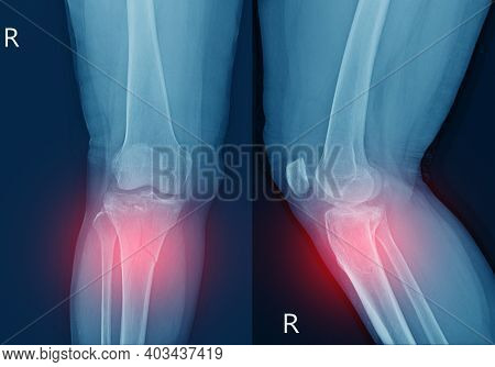 X-ray Knee Fracture Proximal Metaphysis Of Tibia.depressed Fracture Of Lateral Tibial Plateau.severe