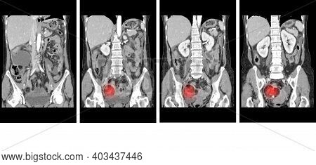 Ct Whole Abdomen  Finding Fatty Mass With Calcification At Rt Adnexa, Representing Dermoid Cyst.