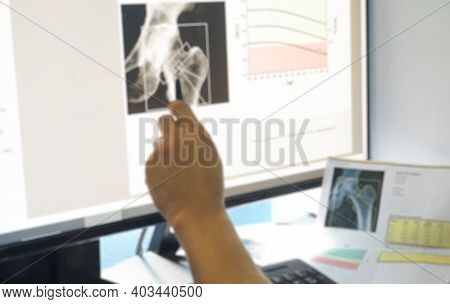 Blurred Close Up Hand Doctor Examines Hip Bone Density Images Of Patient During A Health Check And C