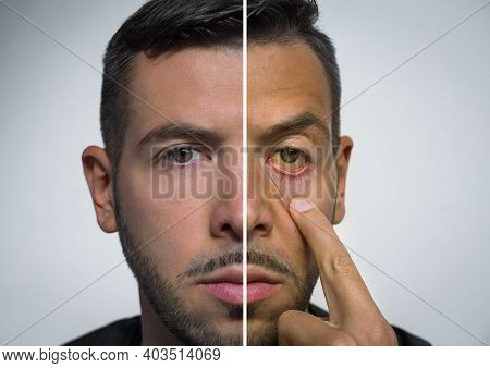 Man Face Divided Into Two Parts One Healthy And One Unhealthy. Bad Habits Vs Good Habits. Alcohol Ha