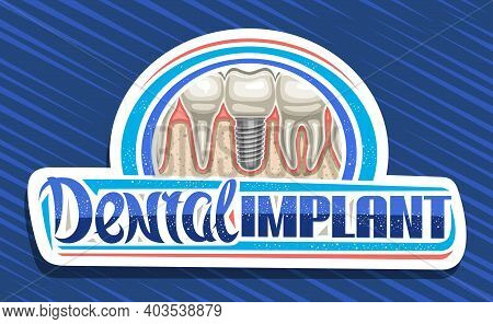 Vector Logo For Dental Implant Clinic, Art Design Decorative Sign Board With Illustration Of Ceramic