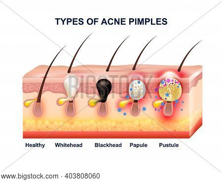 Colored Skin Acne Anatomy Composition With Types Of Acne Pimples Before And After Vector Illustratio