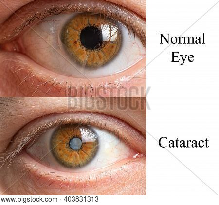 Comparison Of A Healthy Human Eye And An Eye With A Clouded Lens Cataract.
