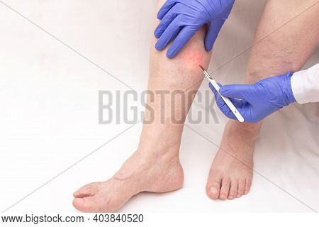 A Phlebologist Holds A Scalpel Near The Patients Leg Of A Woman Who Has Varicose Veins In Her Legs.