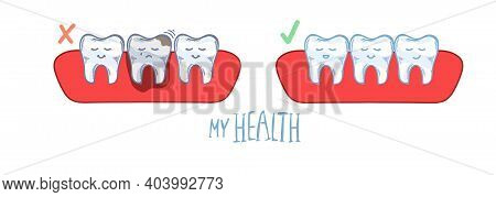 Infographics. Teeth In The Gum, Caries, Damaged Tooth, Toothache And Healthy Teeth. Hand Drawing. Ed