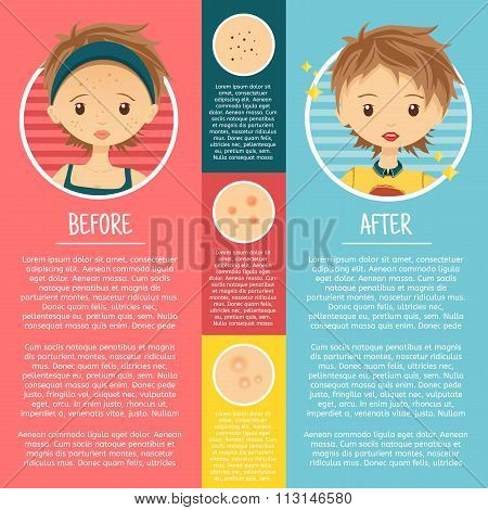 Infographics on problem skin with illustrations girl with pimples, pores, acne before and after. Vec