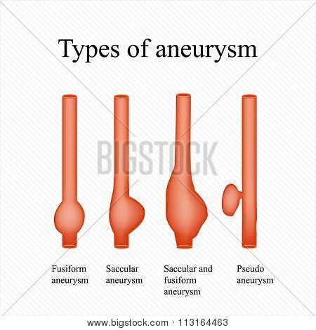 Aneurysm. Types aneurysm. Infographics. Vector illustration