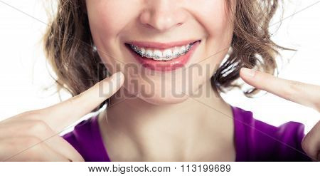 Beautiful smiling girl wearing braces.