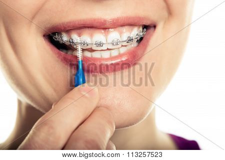Beautiful smiling girl with retainer for teeth.