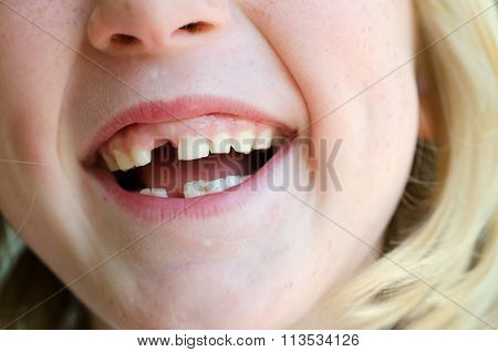 Childs mouth with gap from missing milk tooth