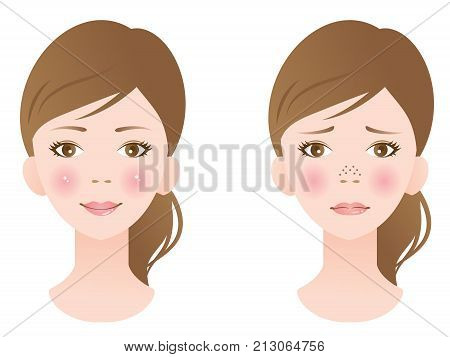 unclogged pore treatment on female face. before and after.