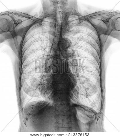Normal Chest X-ray Of Old Patient . You Can Seen Calcification At Rib , Trachea , Bronchus . Front V