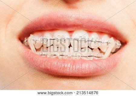 Close-up picture of teeth with dental braces and elastics full mouth