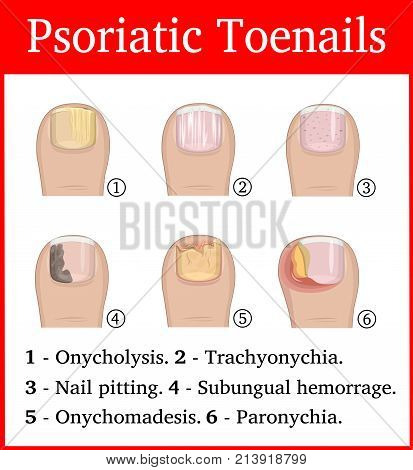 Illustration of six kinds of psoriatic tonails, such as nail pitting, subungual hemorrhage, onychomadesis, trachyonychia, onycholysis and paronychia