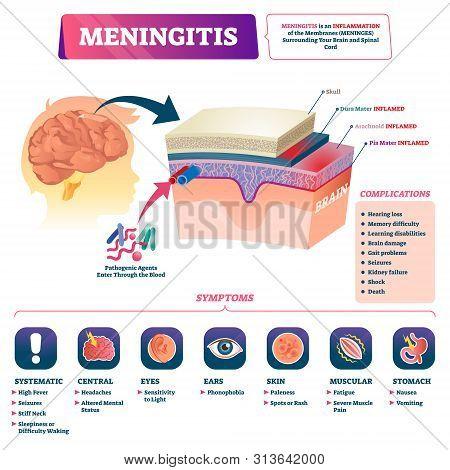 Meningitis Vector Illustration. Medical Labeled Brain Covering Membrane Inflammation Scheme. Educati