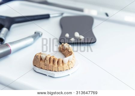 Artificial Jaw With Veneers And Veneers On The Mirror In The Office At The Dentist.