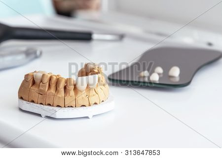 Artificial Jaw With Dental Veneers And Crowns In The Office At The Dentist. Dental Laboratory.