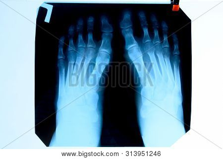 X-ray Of Toes. Foot On X-ray. Bone Research