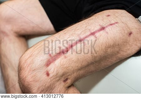 Postoperative Suture On The Male Leg. A Large Scar On The Man's Thigh. Red Stitches. Recovery And Wo
