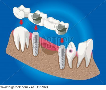 Isometric Prosthetic Dentistry Concept With Dental Bridge Used For Missing Teeth Covering Isolated V