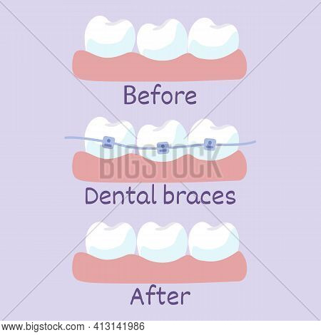 Stages Of Teeth Alignment, Before And After Correction With Brackets Correction Of Teeth With Orthod
